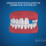 sna_Byugel_na_klammerakh_pri_vklyuchennom_defekte