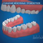 sna_Gigiena_mezhzubnykh_promezhutkov