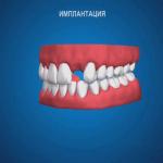 sna_Implantatsia