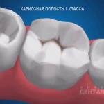 sna_Karioznaya_polost_1_klassa