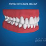 sna_Karioznaya_polost_3_klassa