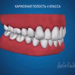 sna_Karioznaya_polost_4_klassa