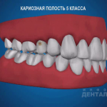 sna_Karioznaya_polost_5_klassa