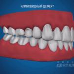 sna_Klinovidny_defekt