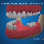 sna_Kostnaya_plastika