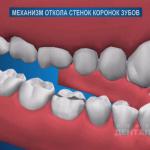 sna_Mekhanizm_otloma_stenki