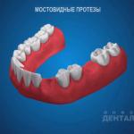 sna_Mostovidnye_protezy