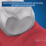 sna_Nepryamaya_restavratsia