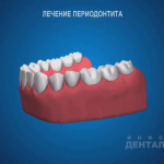 sna_Periodontit_-_lechenie