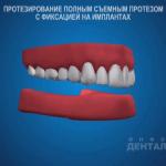 sna_Semnye_protezy_na_implantakh