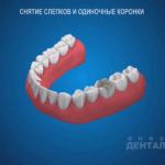 sna_Slepki_i_odinochnye_koronki