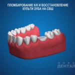 sna_Steklovolokno