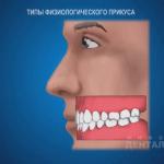 sna_Vidy_prikusa