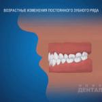 sna_Vozrastnye_izmenenia